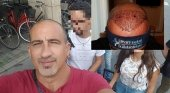 Andrés, turista capilar malagueño que viajó a Turquía para implantarse pelo