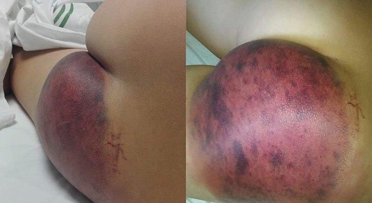 Menor hospitalizado al ser succionado por sumidero de parque acuático