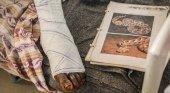 5,4 millones de personas son mordidas por serpientes cada año|Foto: Diario Médico